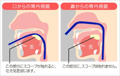 経鼻内視鏡検査とは